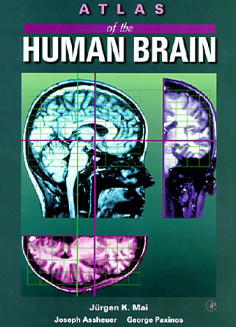 Atlas of the Human Brain – First edition 1995 (Paperback)